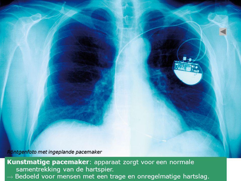 Kunstmatige pacemaker: apparaat zorgt voor een normale samentrekking van de hartspier.  Bedoeld voor mensen met een trage en onregelmatige hartslag.