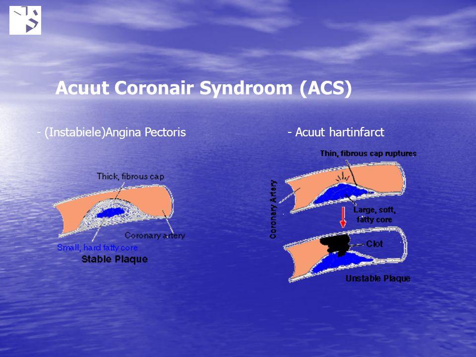 Acuut Coronair Syndroom (ACS) - (Instabiele)Angina Pectoris- Acuut hartinfarct