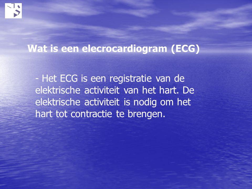Wat is een elecrocardiogram (ECG) - Het ECG is een registratie van de elektrische activiteit van het hart. De elektrische activiteit is nodig om het h