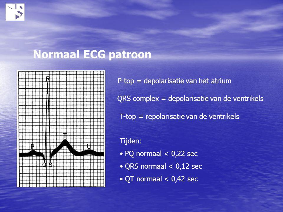 Normaal ECG patroon P-top = depolarisatie van het atrium QRS complex = depolarisatie van de ventrikels T-top = repolarisatie van de ventrikels Tijden: