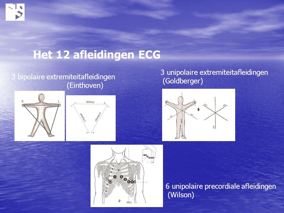 Het 12 afleidingen ECG 3 bipolaire extremiteitafleidingen (Einthoven) 3 unipolaire extremiteitafleidingen (Goldberger) 6 unipolaire precordiale afleid