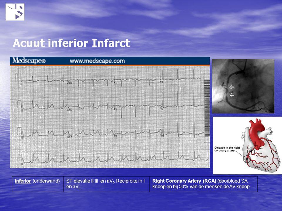 Inferior (onderwand)ST elevatie II,III en aV f. Reciproke in I en aV L Right Coronary Artery (RCA) (doorbloed SA knoop en bij 50% van de mensen de AV