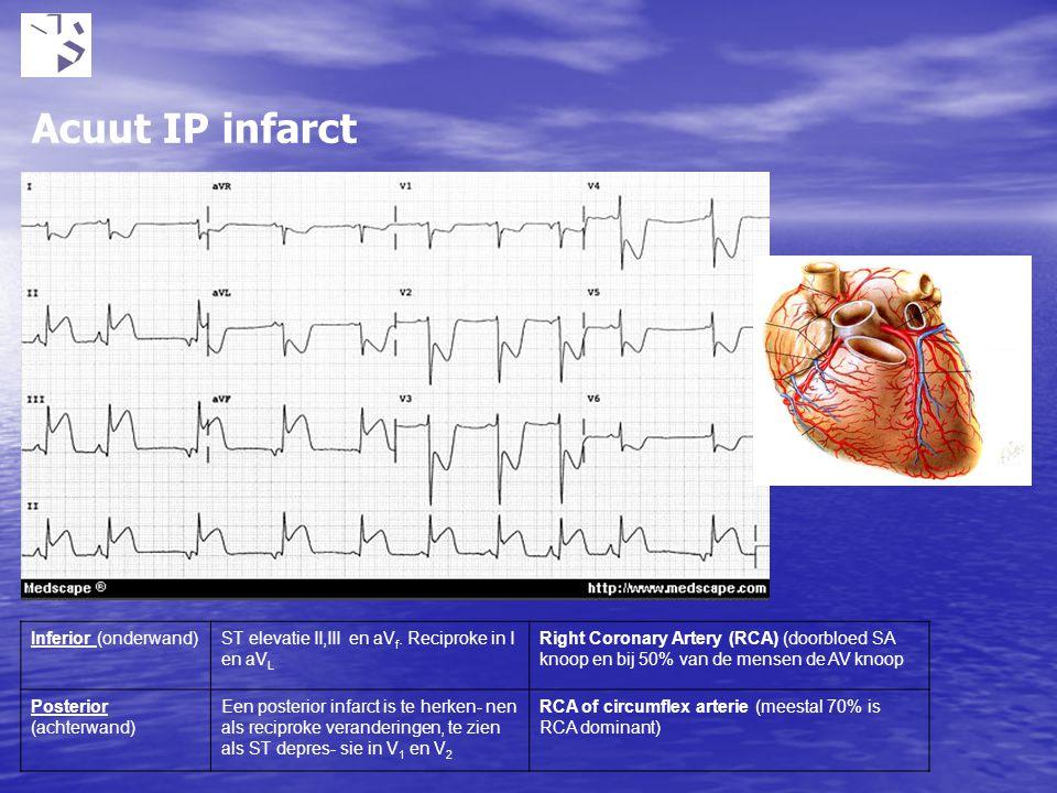 Acuut IP infarct Inferior (onderwand)ST elevatie II,III en aV f. Reciproke in I en aV L Right Coronary Artery (RCA) (doorbloed SA knoop en bij 50% van