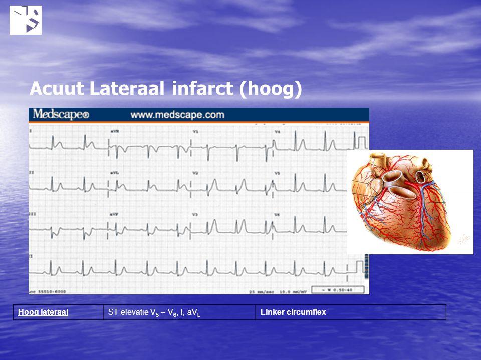 Acuut Lateraal infarct (hoog) Hoog lateraalST elevatie V 5 – V 6, I, aV L Linker circumflex