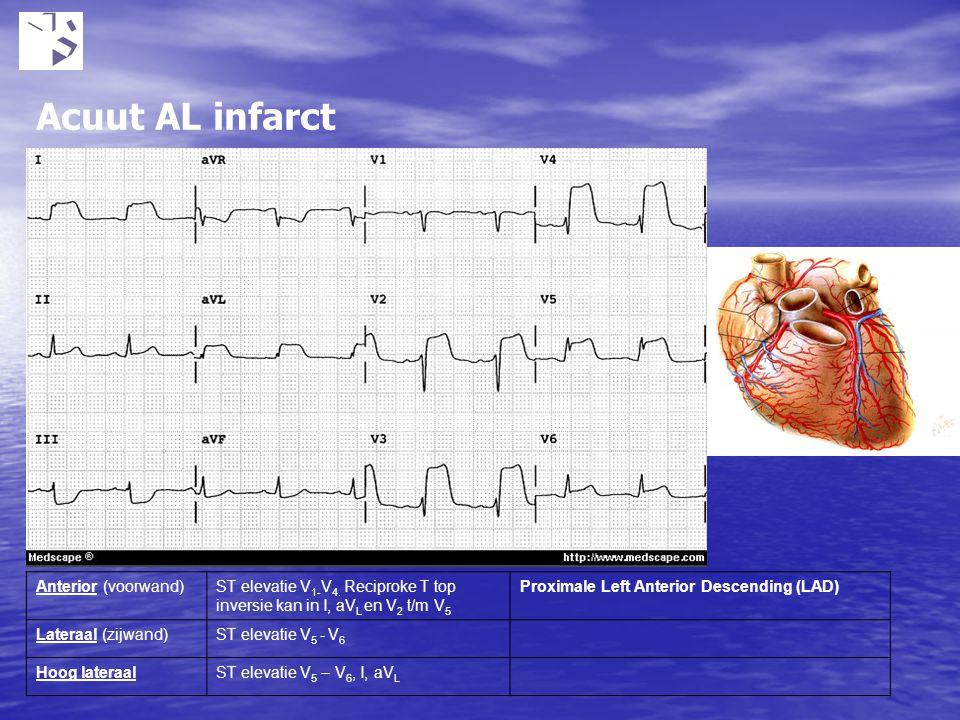 Acuut AL infarct Anterior (voorwand)ST elevatie V 1- V 4. Reciproke T top inversie kan in I, aV L en V 2 t/m V 5 Proximale Left Anterior Descending (L