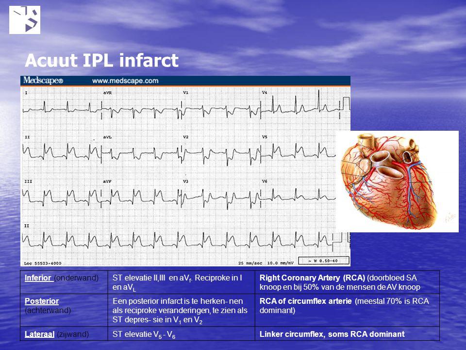 Acuut IPL infarct Inferior (onderwand)ST elevatie II,III en aV f. Reciproke in I en aV L Right Coronary Artery (RCA) (doorbloed SA knoop en bij 50% va
