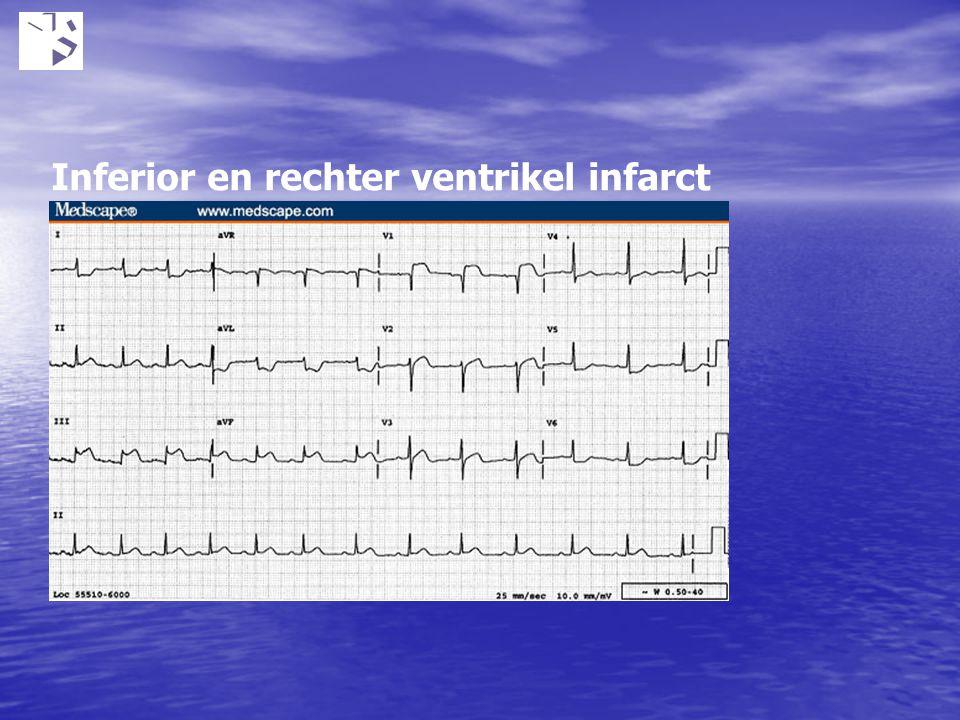 Inferior en rechter ventrikel infarct