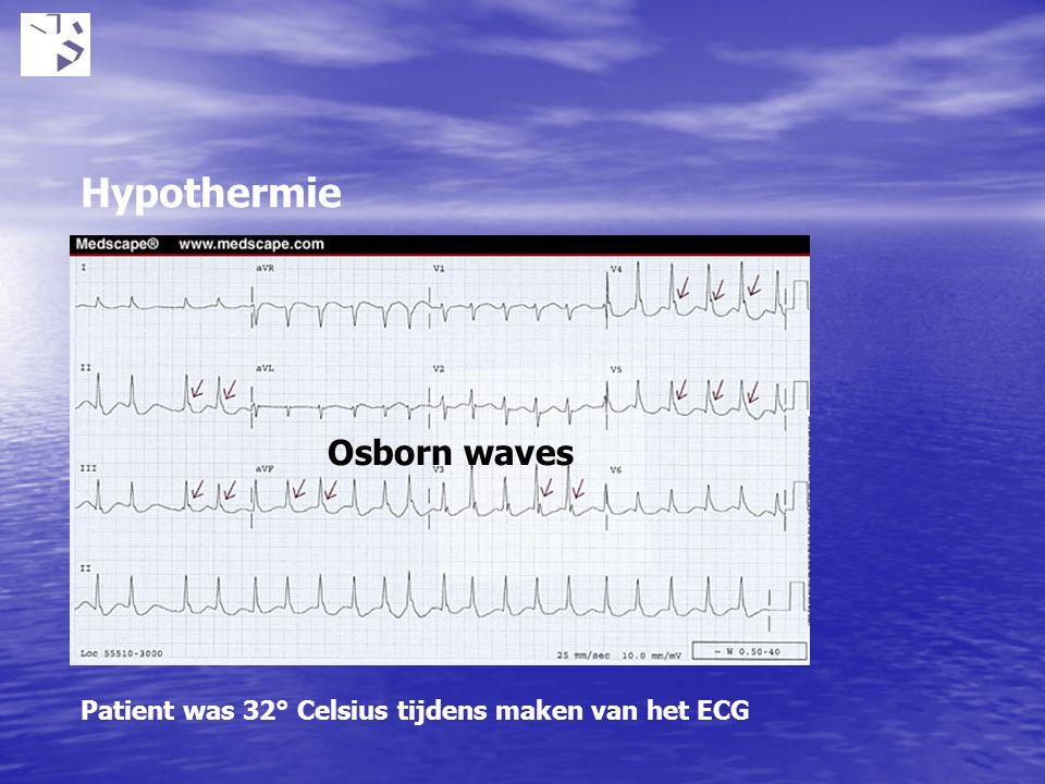 Osborn waves Patient was 32° Celsius tijdens maken van het ECG