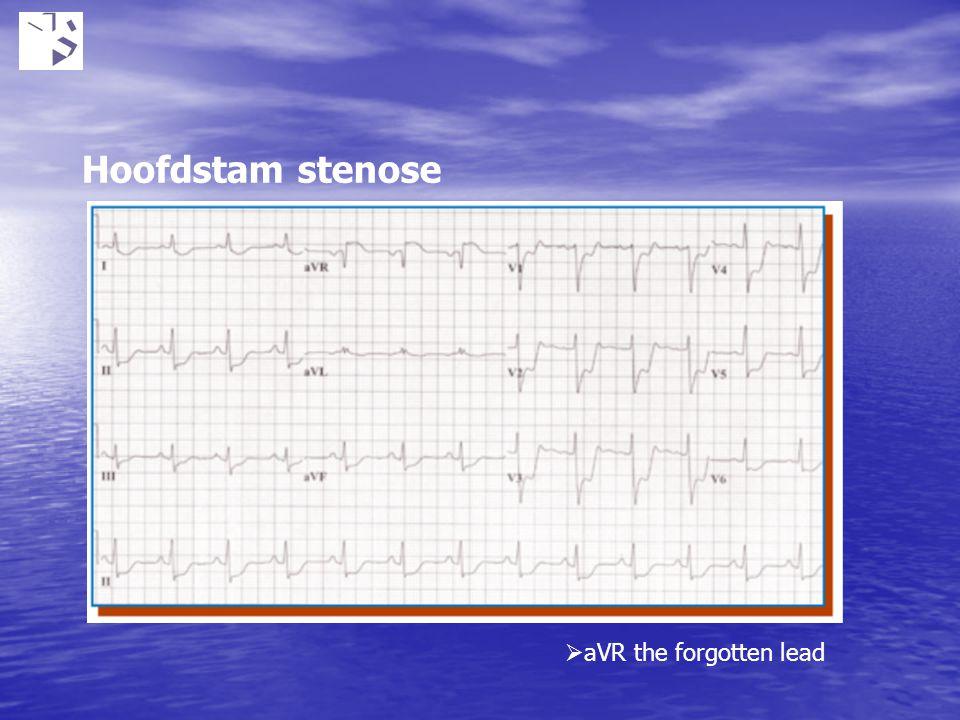 Hoofdstam stenose  aVR the forgotten lead