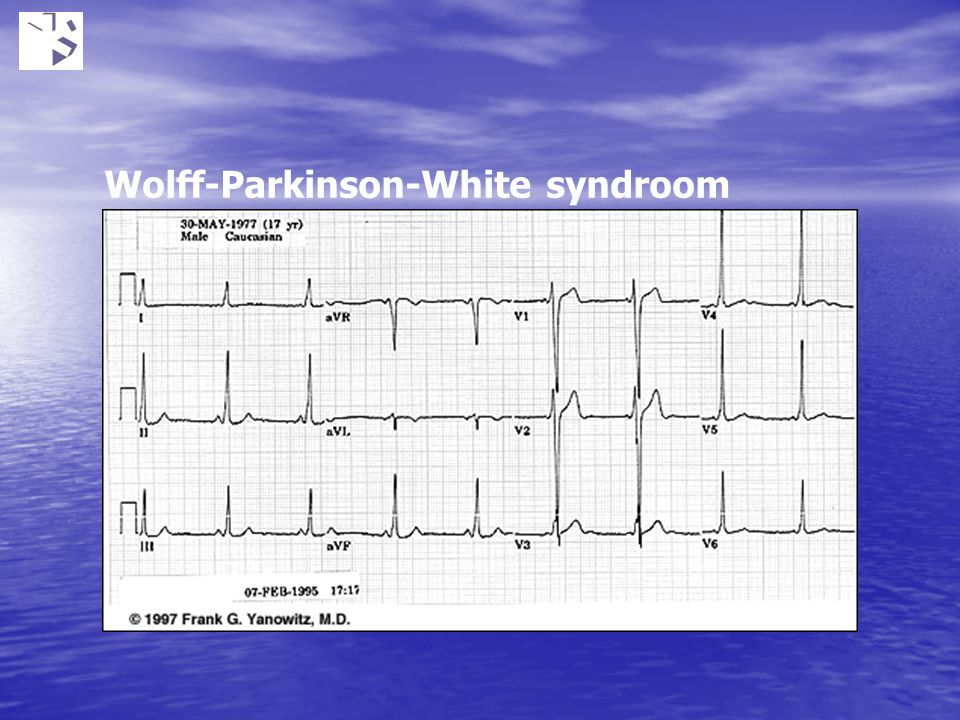 Wolff-Parkinson-White syndroom