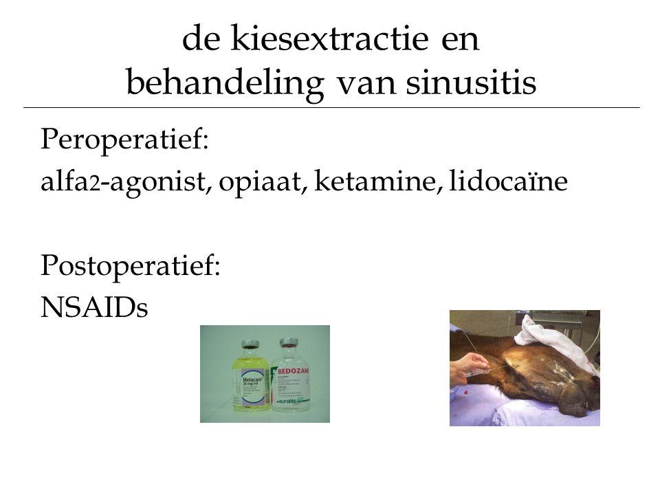 de kiesextractie en behandeling van sinusitis Peroperatief: alfa 2 -agonist, opiaat, ketamine, lidocaïne Postoperatief: NSAIDs