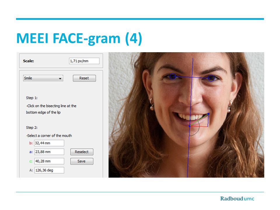 MEEI FACE-gram (4)