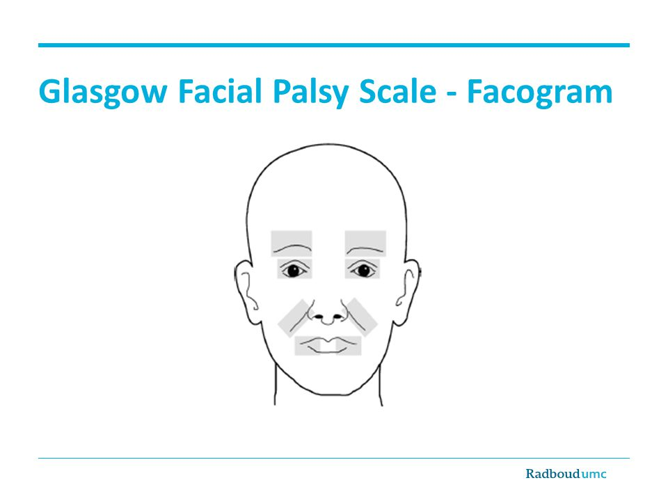 Glasgow Facial Palsy Scale - Facogram