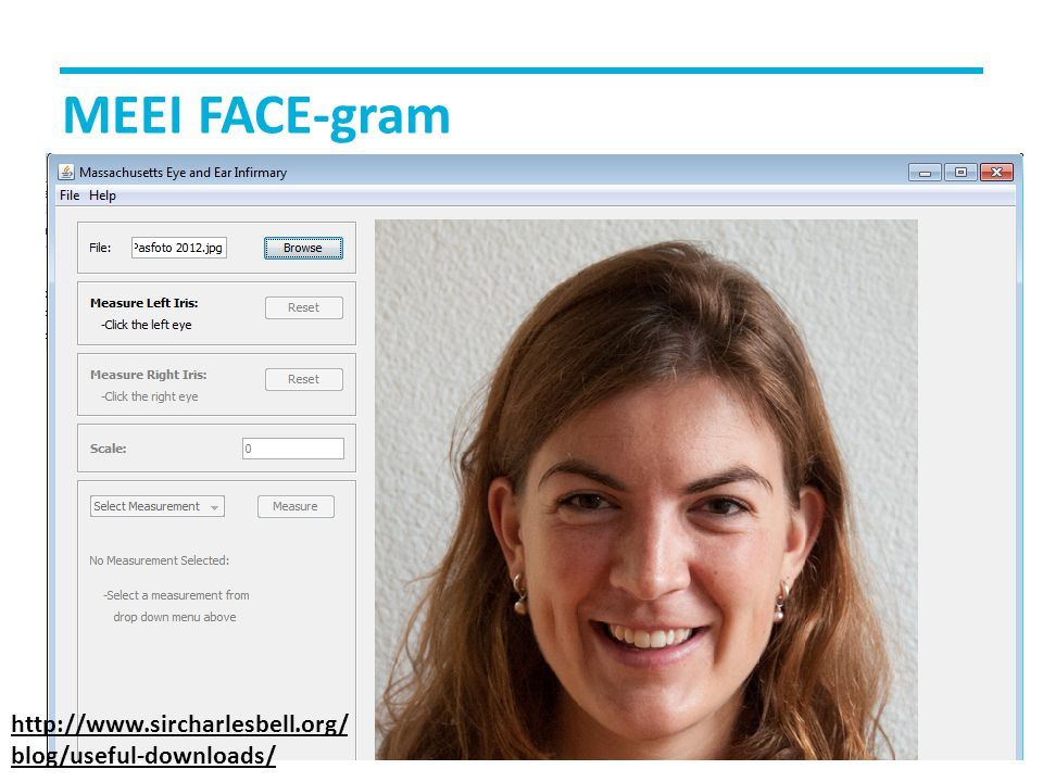 MEEI FACE-gram http://www.sircharlesbell.org/ blog/useful-downloads/