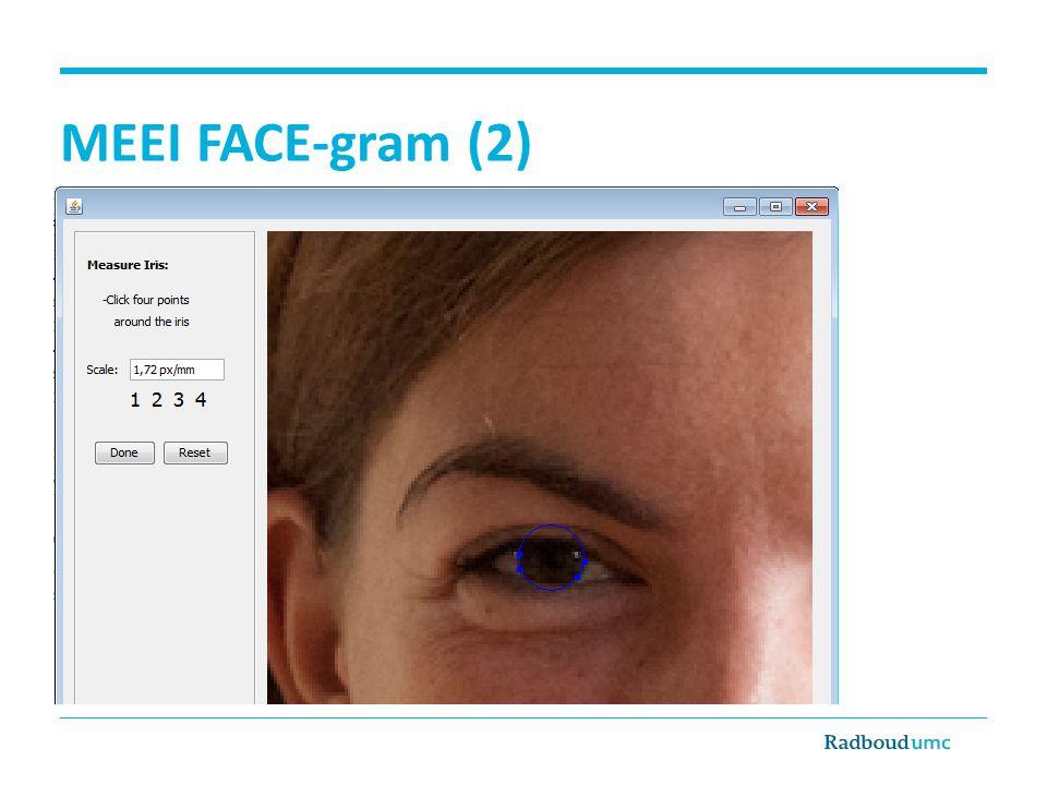 Facial Clinimetric Evaluation Scale FaCE Scale 15 items, 6 domainen
