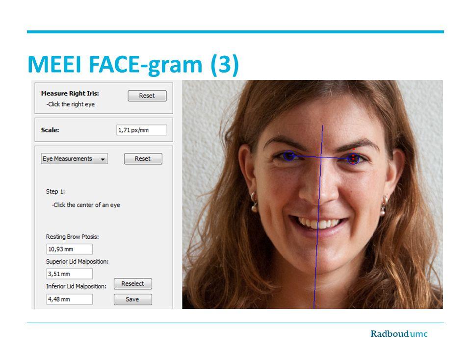 FaCE – Dutch Language Version