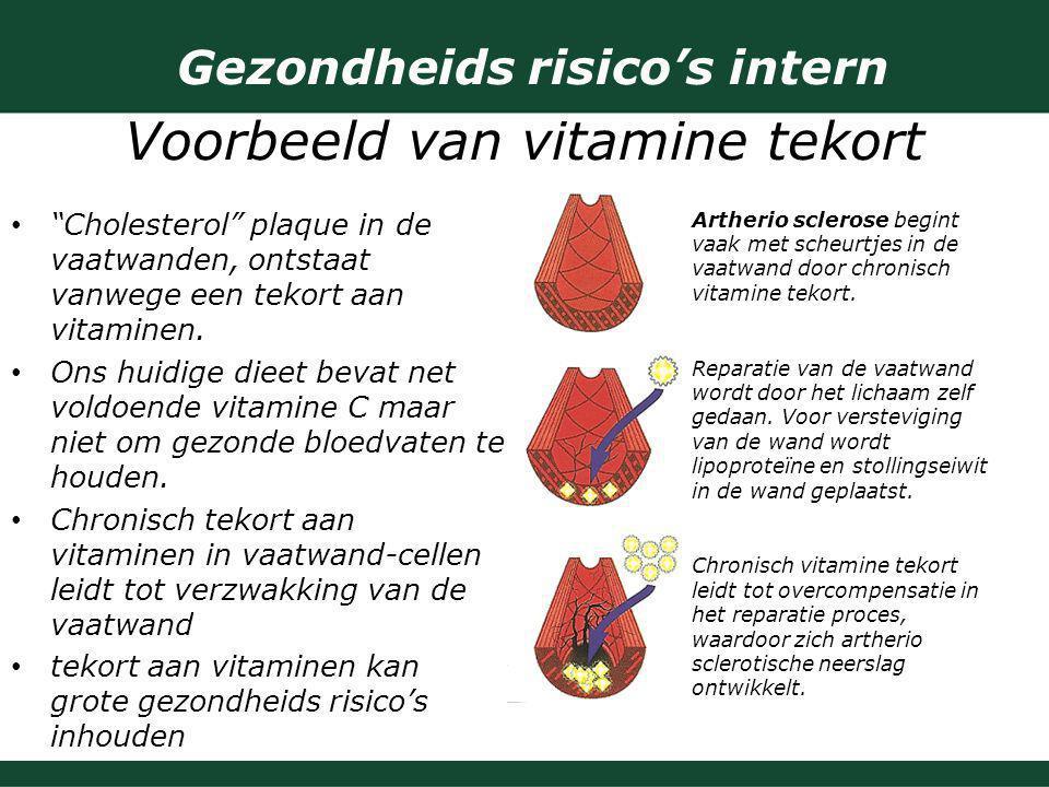 """Gezondheids risico's intern Voorbeeld van vitamine tekort """"Cholesterol"""" plaque in de vaatwanden, ontstaat vanwege een tekort aan vitaminen. Ons huidig"""