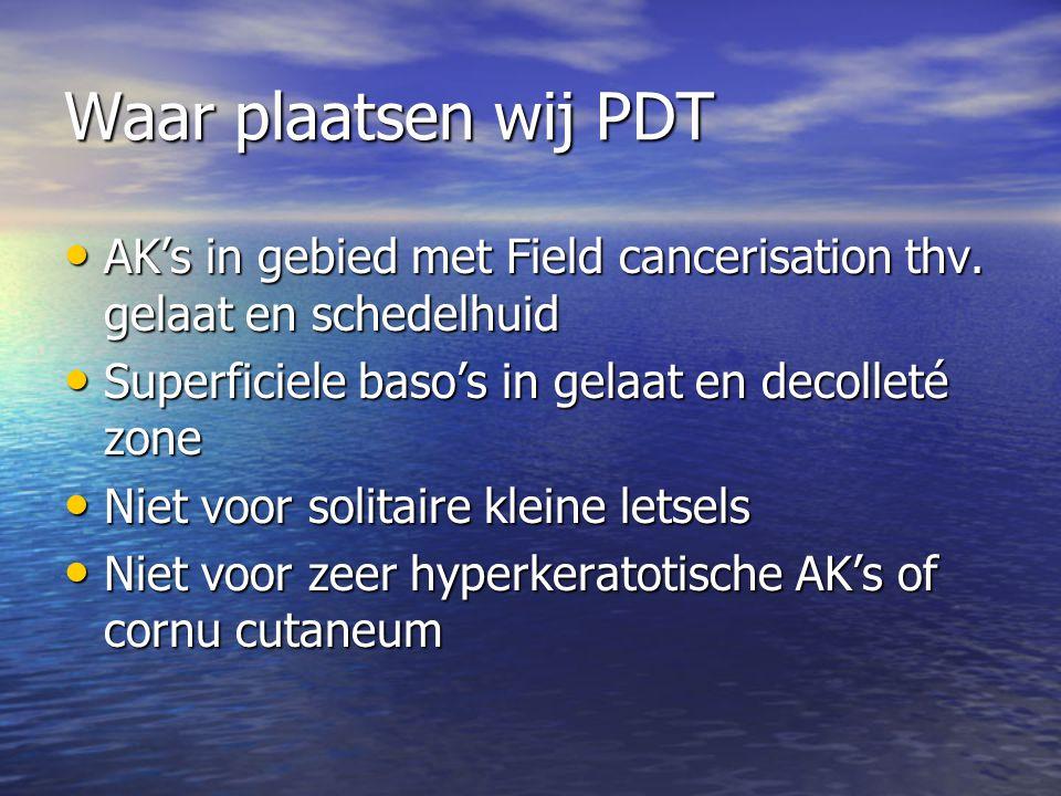Waar plaatsen wij PDT AK's in gebied met Field cancerisation thv.