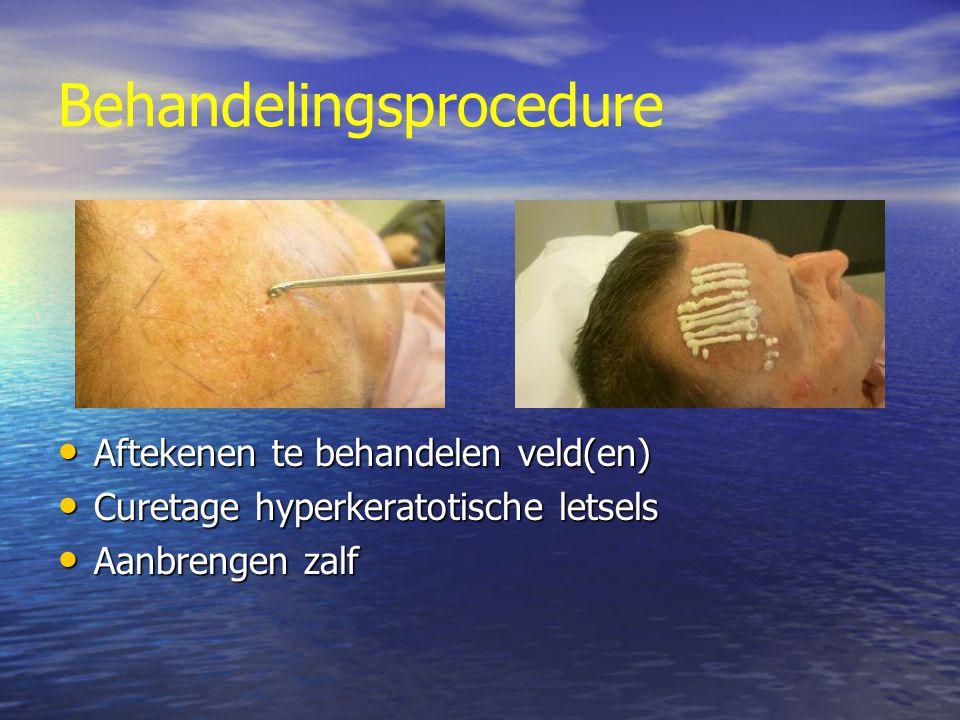 Behandelingsprocedure Aftekenen te behandelen veld(en) Aftekenen te behandelen veld(en) Curetage hyperkeratotische letsels Curetage hyperkeratotische letsels Aanbrengen zalf Aanbrengen zalf