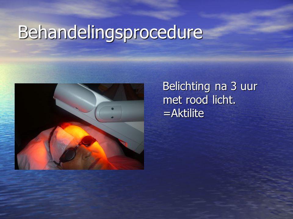 Behandelingsprocedure Belichting na 3 uur met rood licht.