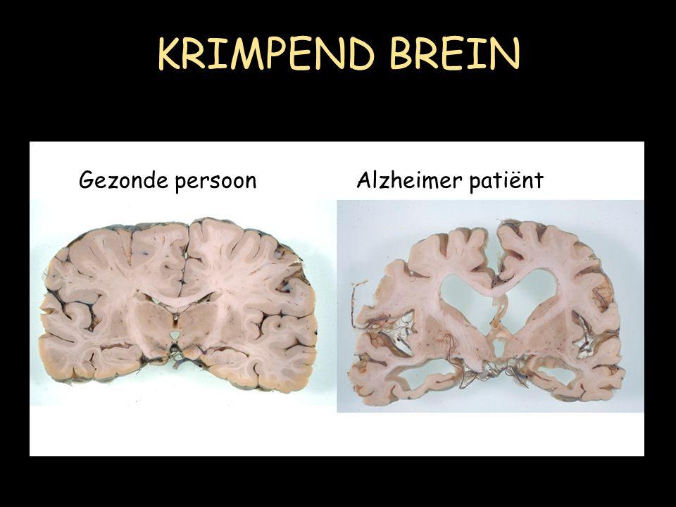 KRIMPEND BREIN Gezonde persoonAlzheimer patiënt