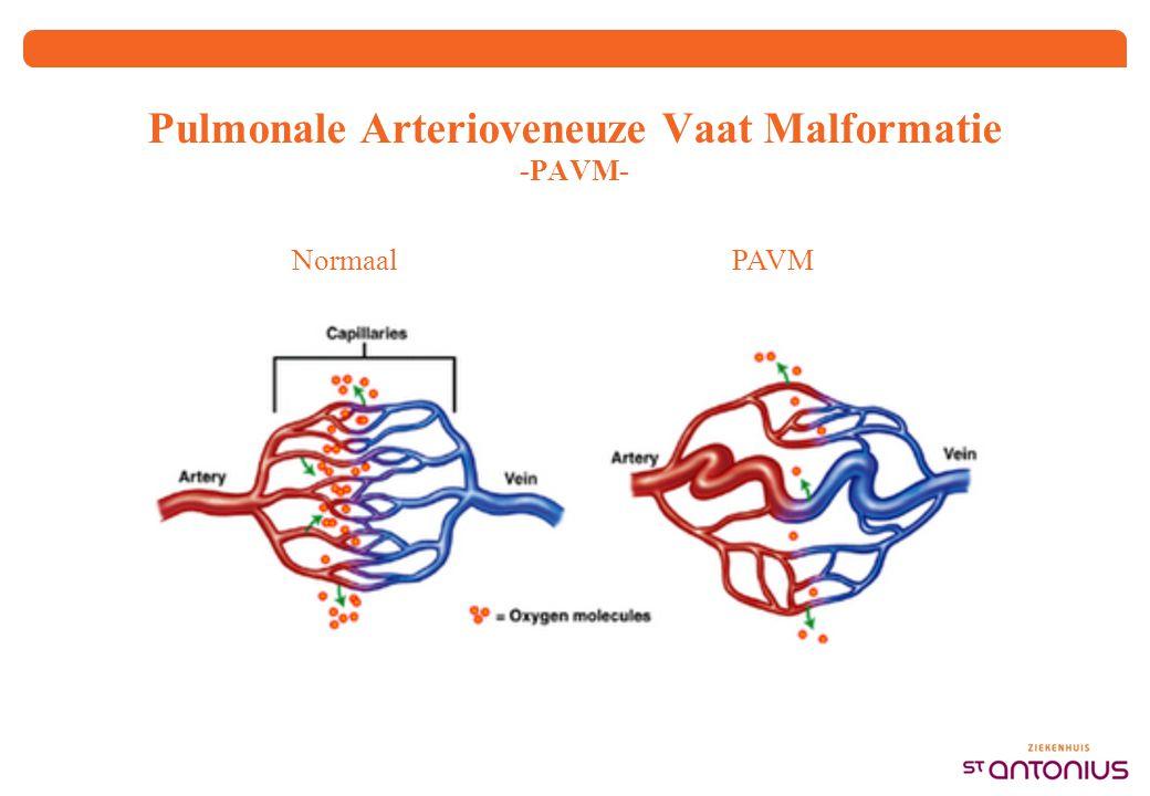 Pulmonale Arterioveneuze Vaat Malformatie -PAVM- Normaal PAVM
