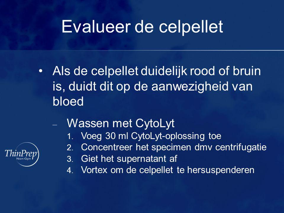 Evalueer de celpellet Als de celpellet duidelijk rood of bruin is, duidt dit op de aanwezigheid van bloed – Wassen met CytoLyt 1. Voeg 30 ml CytoLyt-o