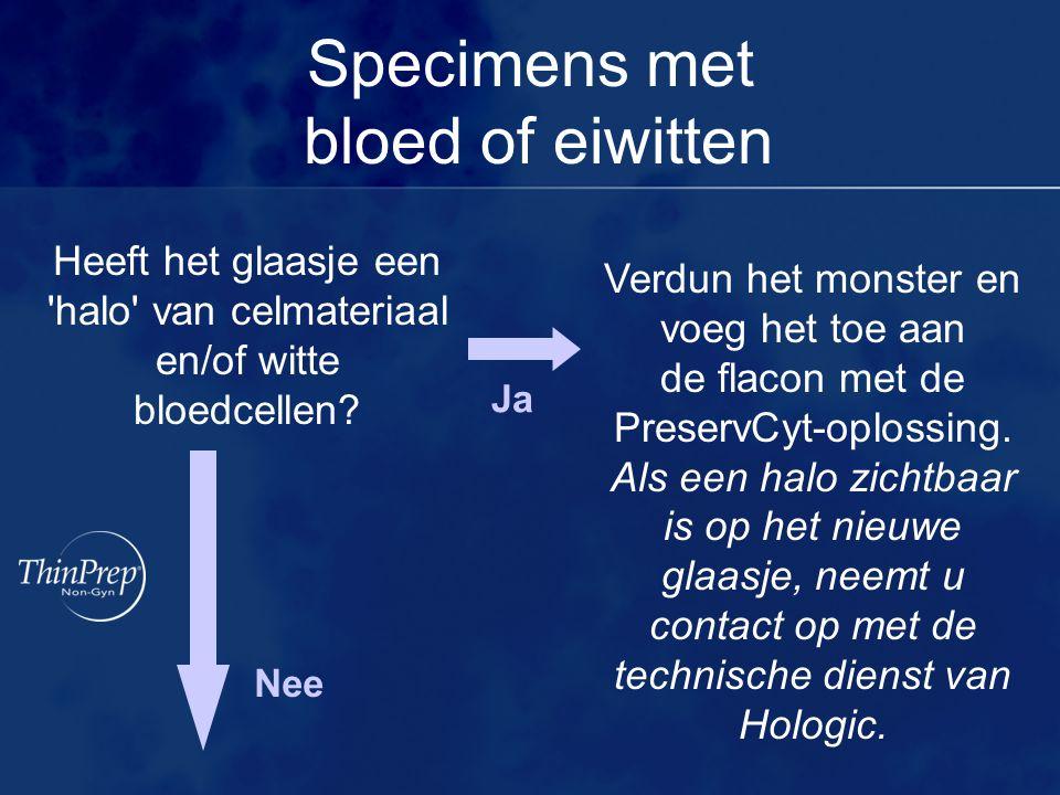 Specimens met bloed of eiwitten Heeft het glaasje een 'halo' van celmateriaal en/of witte bloedcellen? Nee Ja Verdun het monster en voeg het toe aan d