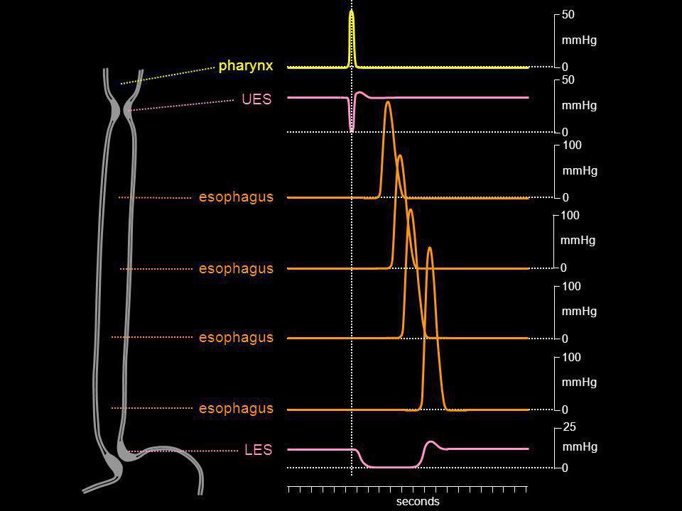 0 100 mmHg 0 100 mmHg 0 25 mmHg 0 100 mmHg 0 50 mmHg 0 50 mmHg 0 100 mmHg seconds pharynx UES LES esophagus