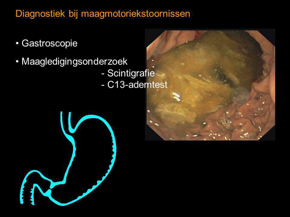Diagnostiek bij maagmotoriekstoornissen Maagledigingsonderzoek - Scintigrafie - C13-ademtest Gastroscopie