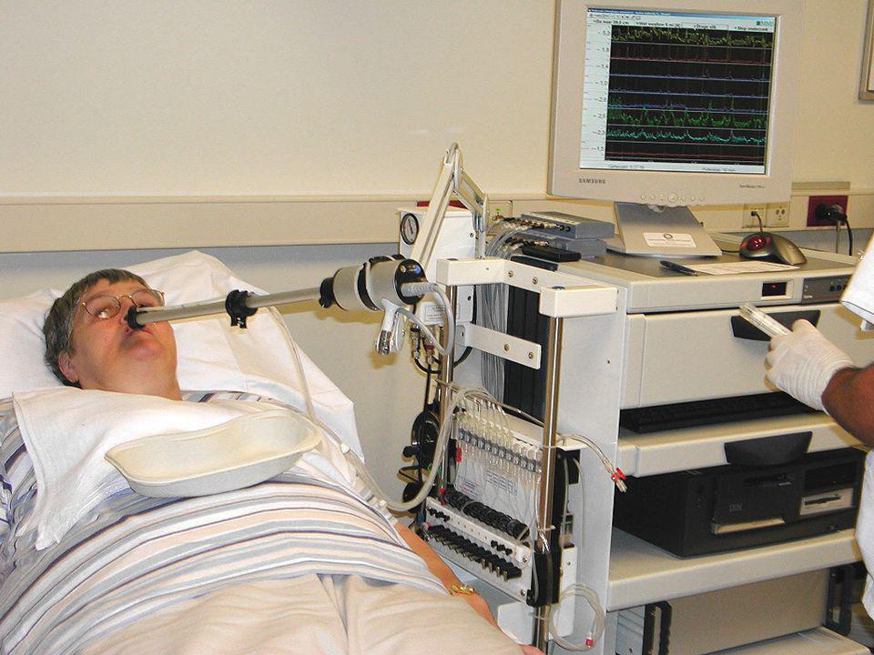 Symptomen: Retrosternale pijn Dysfagie Slokdarm-spasmen Therapie: Gladde spierrelaxantia Botox (10 x 10 IE) Lange myotomie