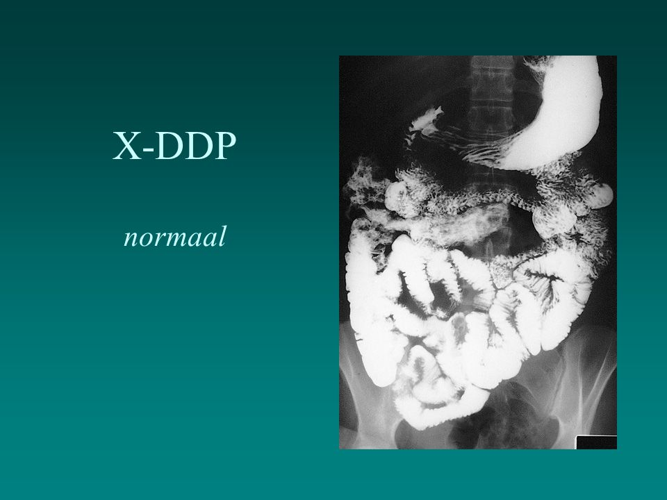 X-DDP normaal