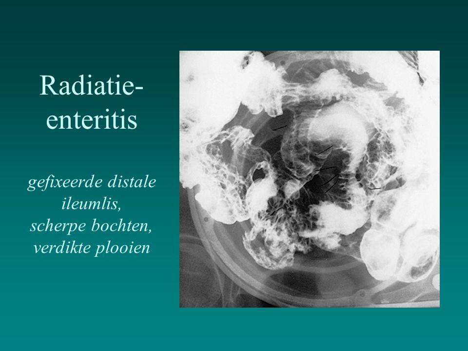 Radiatie- enteritis gefixeerde distale ileumlis, scherpe bochten, verdikte plooien