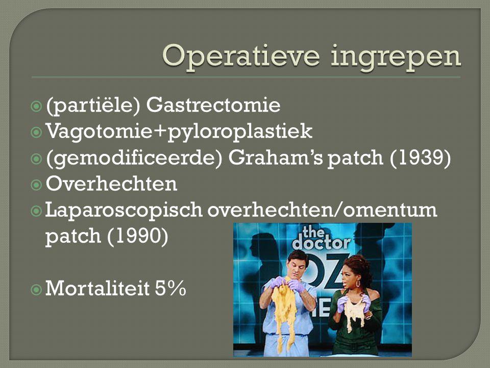  (partiële) Gastrectomie  Vagotomie+pyloroplastiek  (gemodificeerde) Graham's patch (1939)  Overhechten  Laparoscopisch overhechten/omentum patch