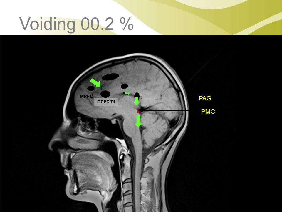 PAG PMC MPFC TH ACC H Voiding 00.2 % OPFC/RI