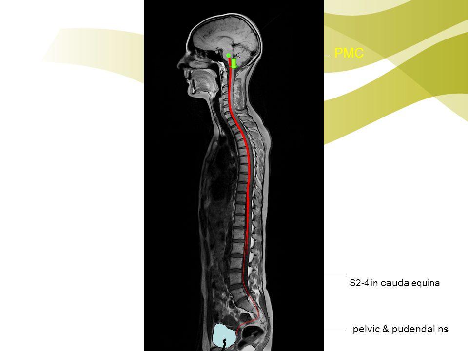 PMC S2-4 in cauda equina pelvic & pudendal ns
