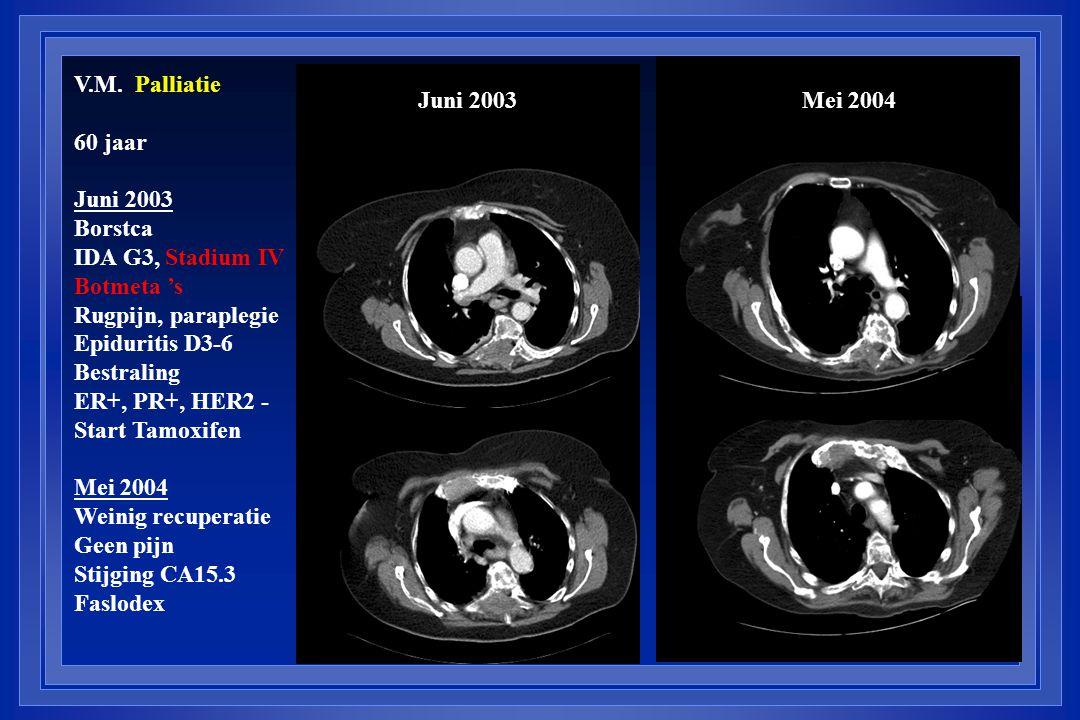 V.M. Palliatie 60 jaar Juni 2003 Borstca IDA G3, Stadium IV Botmeta 's Rugpijn, paraplegie Epiduritis D3-6 Bestraling ER+, PR+, HER2 - Start Tamoxifen