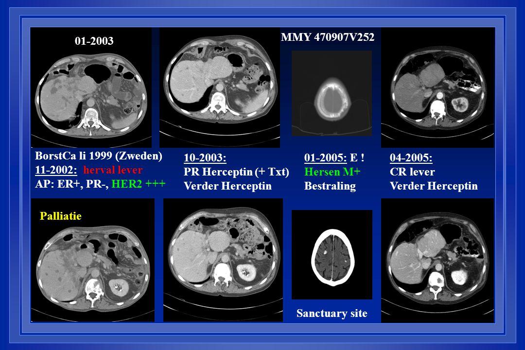 01-2003 04-2005: CR lever Verder Herceptin 01-2005: E ! Hersen M+ Bestraling BorstCa li 1999 (Zweden) 11-2002: herval lever AP: ER+, PR-, HER2 +++ 10-