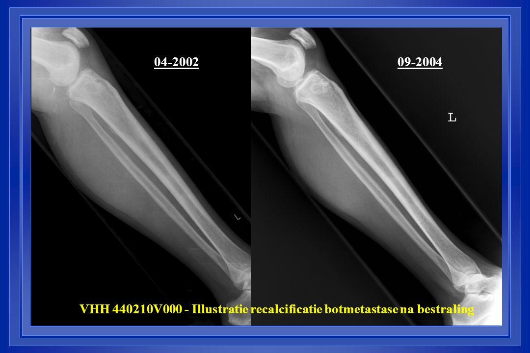 VHH 440210V000 - Illustratie recalcificatie botmetastase na bestraling 04-200209-2004
