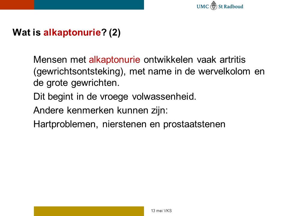 Wat is alkaptonurie? (2) Mensen met alkaptonurie ontwikkelen vaak artritis (gewrichtsontsteking), met name in de wervelkolom en de grote gewrichten. D