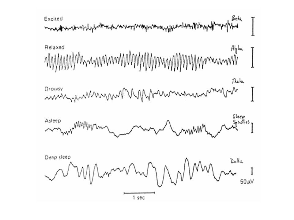 Wat is Epilepsie (vallende ziekte).