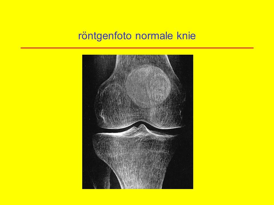 röntgenfoto normale knie