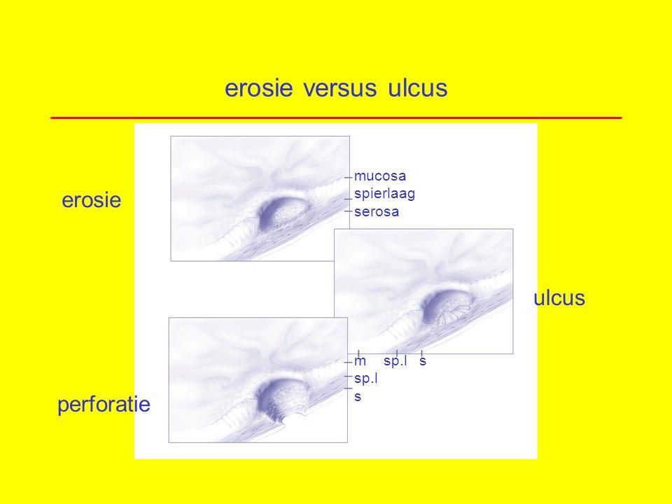 erosie versus ulcus erosie ulcus perforatie mucosa spierlaag serosa m sp.l s sp.l s
