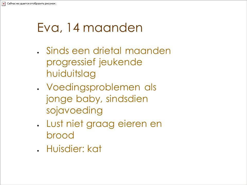 Eva, 14 maanden  Sinds een drietal maanden progressief jeukende huiduitslag  Voedingsproblemen als jonge baby, sindsdien sojavoeding  Lust niet gra