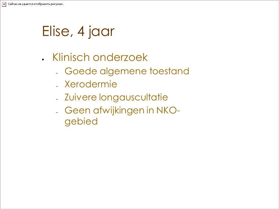 Elise, 4 jaar  Klinisch onderzoek  Goede algemene toestand  Xerodermie  Zuivere longauscultatie  Geen afwijkingen in NKO- gebied