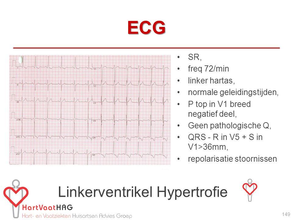 ECG SR, freq 72/min linker hartas, normale geleidingstijden, P top in V1 breed negatief deel, Geen pathologische Q, QRS - R in V5 + S in V1>36mm, repolarisatie stoornissen Linkerventrikel Hypertrofie 149