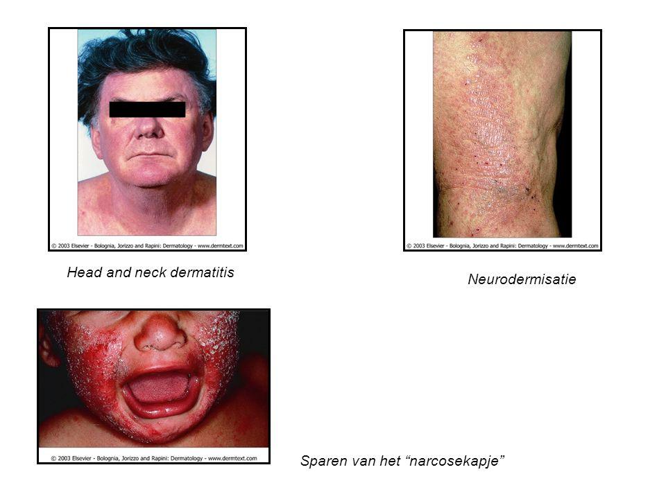 """Head and neck dermatitis Neurodermisatie Sparen van het """"narcosekapje"""""""