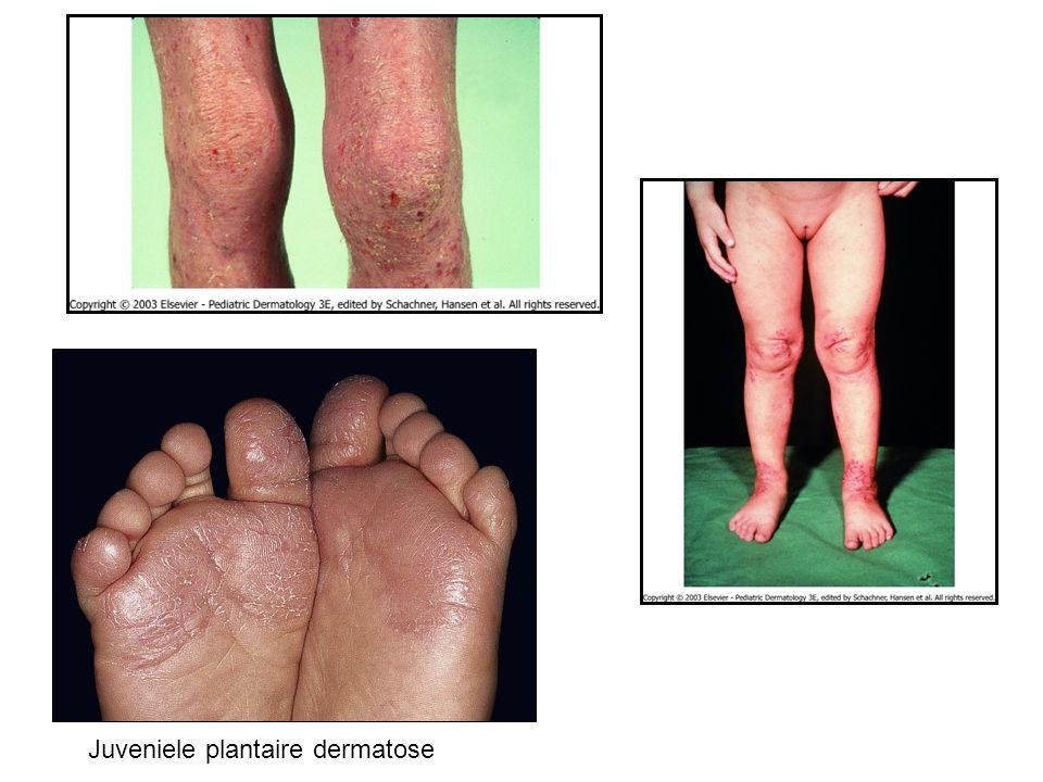Juveniele plantaire dermatose