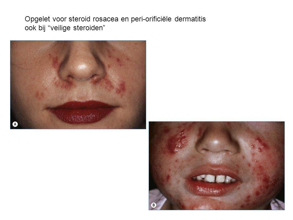 Opgelet voor steroid rosacea en peri-orificiële dermatitis ook bij veilige steroiden