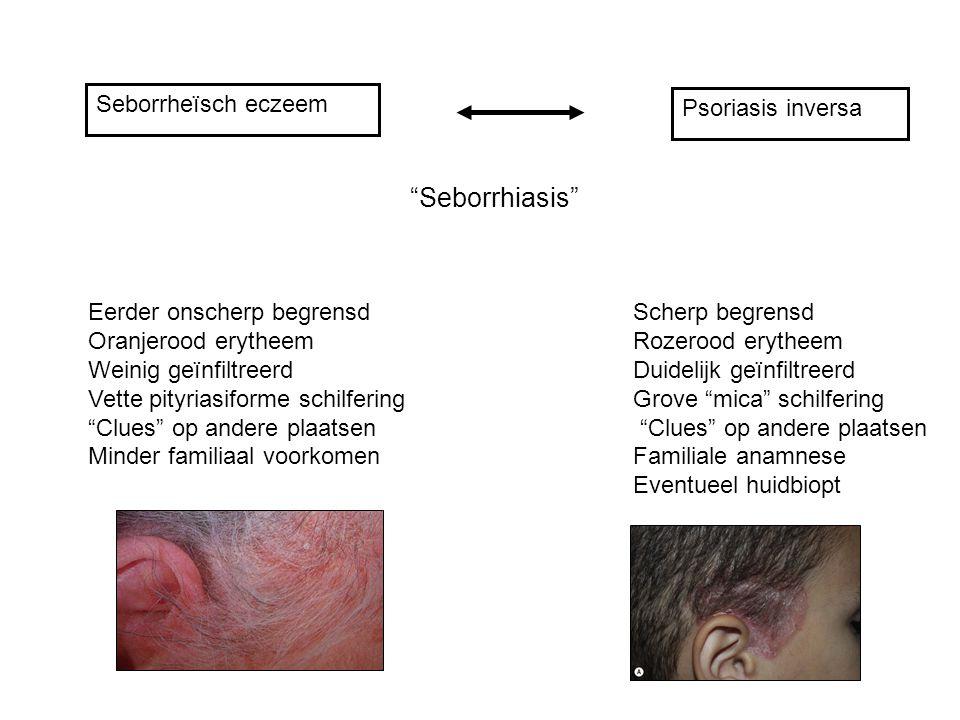 "Seborrheïsch eczeem Psoriasis inversa ""Seborrhiasis"" Scherp begrensd Rozerood erytheem Duidelijk geïnfiltreerd Grove ""mica"" schilfering ""Clues"" op and"